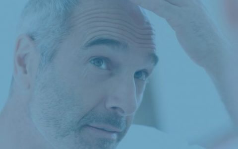 perdida del cabello alopecia 570x540 1 1 480x300 - Como prevenir la caída del cabello
